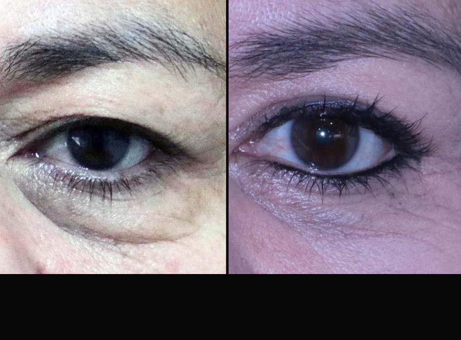 fotos parapados antes y despues blefaroplastia